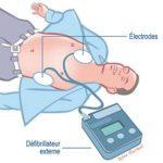 Le défibrillateur cardiaque externe en détails