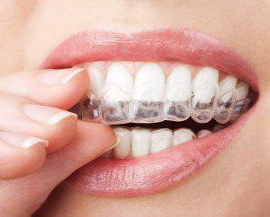 Utilisez une gouttière dentaire pour régler vos problèmes de dents