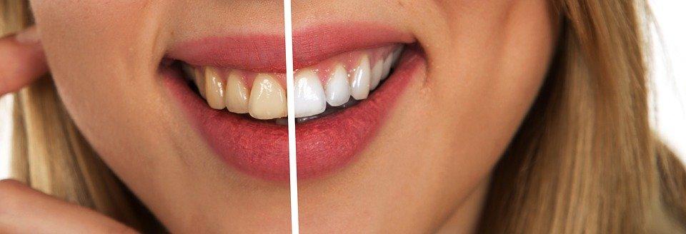 Peut-on faire confiance aux kits de blanchiment des dents?