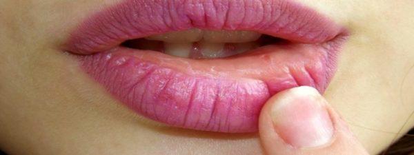 Les lèvres crevassées